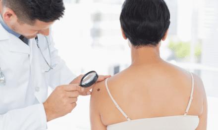 Be mindful of moles on Melanoma Monday